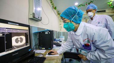 Doctors look at a CT scan of a patient at a hospital in Wuhan in central China's Hubei Province, Thursday, Jan. 30, 2020. China counted 170 deaths from a new virus Thursday and more countries reported infections, including some spread locally, as foreign evacuees from China's worst-hit region returned home to medical observation and even isolation. (Chinatopix via AP) Kina virus                       (Foto: Chinatopix via AP)